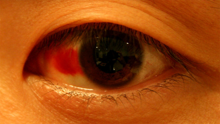 Red_eye2